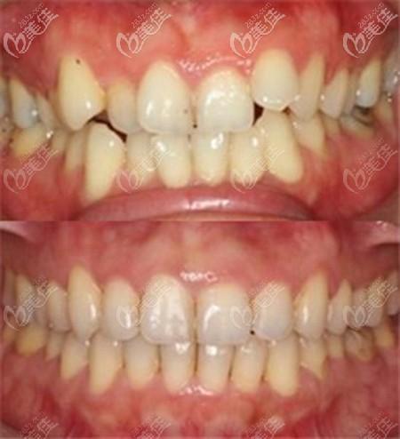 时代天使加强版矫正牙齿的效果对比