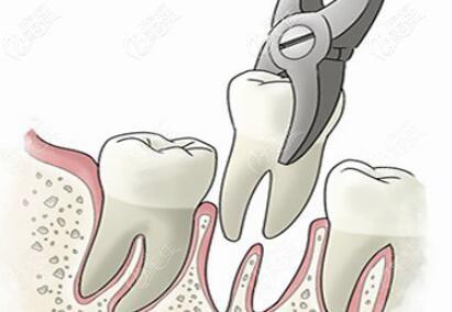 为了矫正牙齿拔牙好吗