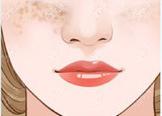 脸上有斑示意图