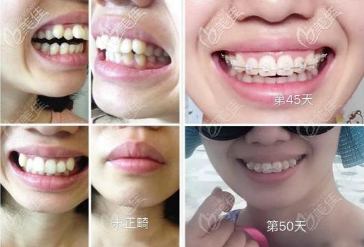 武汉皓诺口腔陶瓷矫正牙齿案例效果图