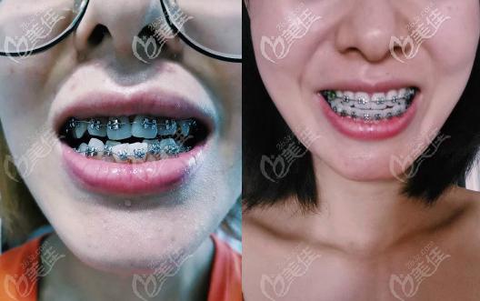 武汉皓诺口腔龅牙矫正案例效果图