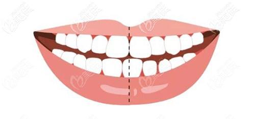 牙齿中线不齐