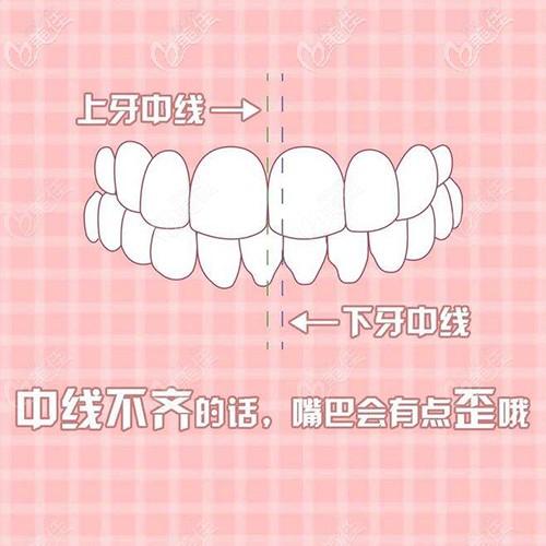 牙齿中线不齐的自测方式