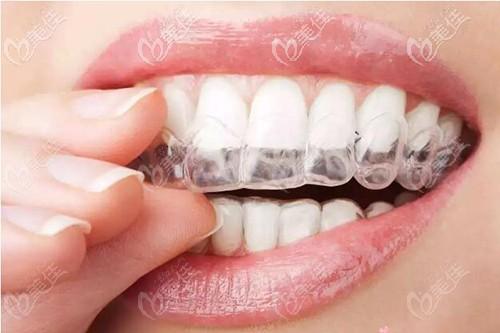 隐形牙齿矫正中线不齐