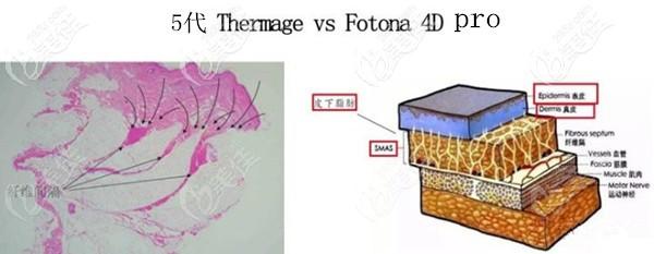 Fotona4D Pro和五代热玛吉治疗肌肤层次不同