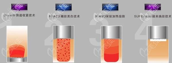 Fotona 4D Pro是通过4个不同模式针对不同层次治疗