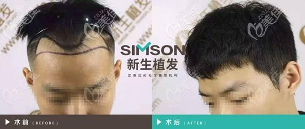 北京新生发际线种植案例
