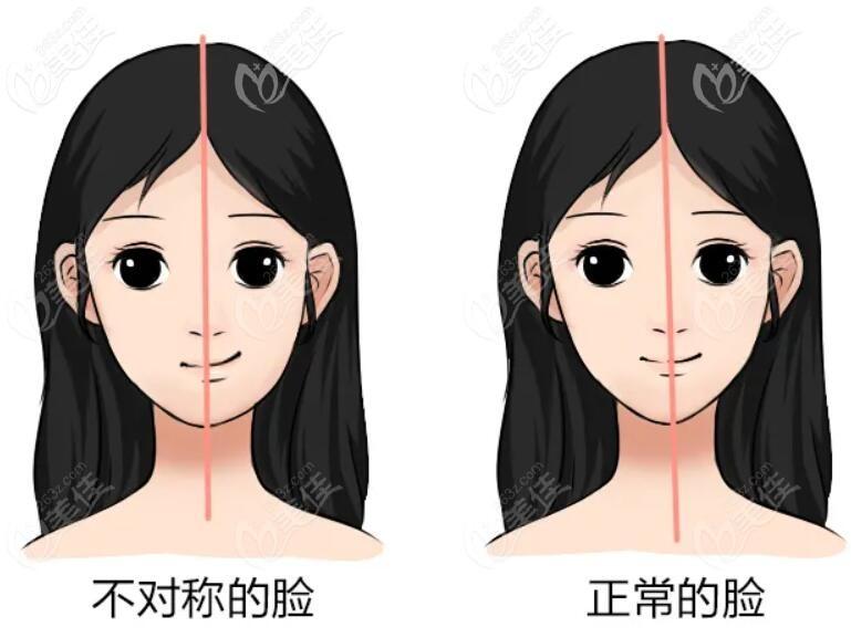 长期一侧咀嚼可能导致大小脸