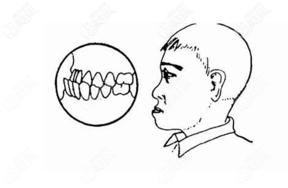 长期一侧咀嚼可能导致牙齿不齐