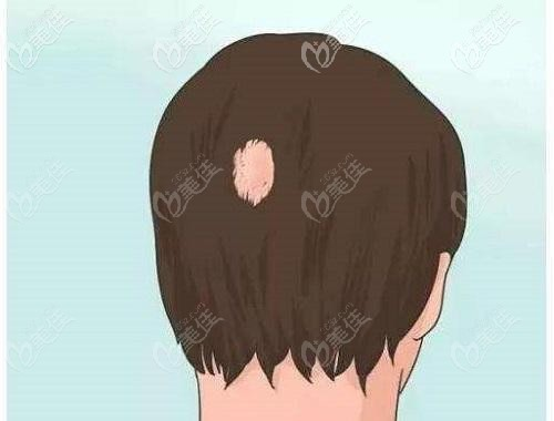 十几年的疤痕能植发吗?
