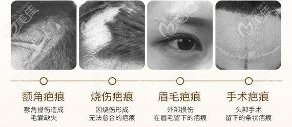 烧伤、烫伤、刀疤疤痕可以植发吗
