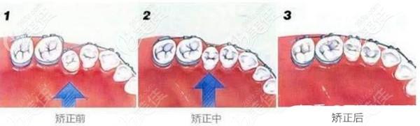 牙齿矫正的效果