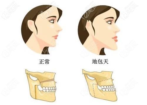 反颌做完牙齿矫正的效果