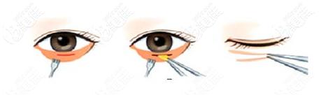 祛眼袋手术过程示意图