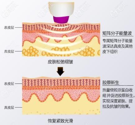 热玛吉治疗皮肤过程示意图