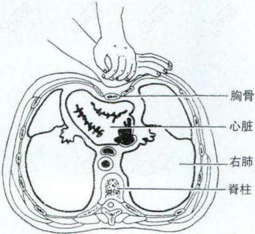 胸部和心脏的距离
