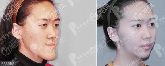 韩国普罗菲尔做轮廓手术怎么样