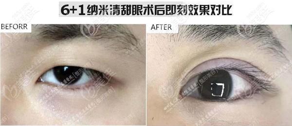双眼皮即刻和恢复后差别大吗?来看看这张6+1纳米清甜眼术后即刻对比效果图