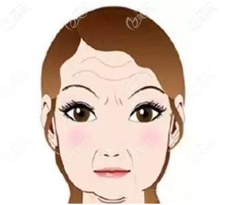 松弛的面部肌肤示意图