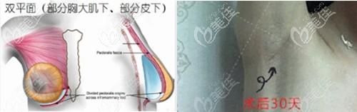 南京华美双平面隆胸技术