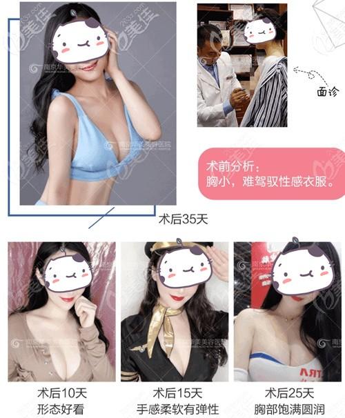 南京华美傲诺拉假体隆胸案例