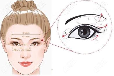 无内眦赘皮的双眼皮标准