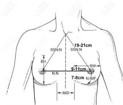 假体隆胸测量数据