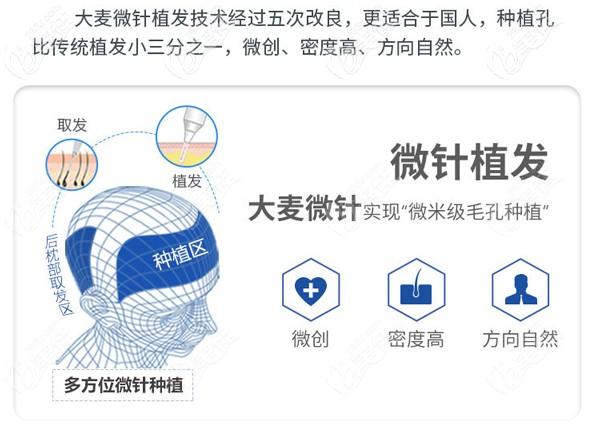 武汉大麦微针植发技术优势
