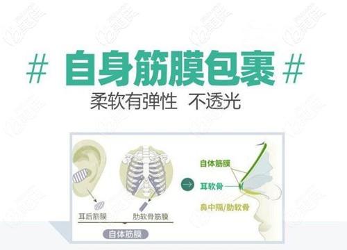 自体筋膜隆鼻原理