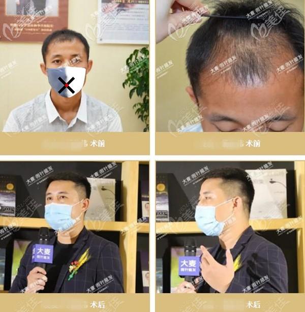 植发十年后会变成怎样?这份武汉大麦微针植发10年以上案例效果回给你答案