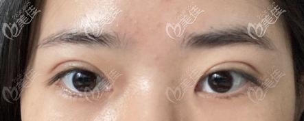 恢复一个月的眼部情况