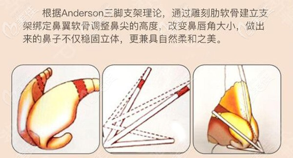 沈正宇医生做隆鼻的手术原理
