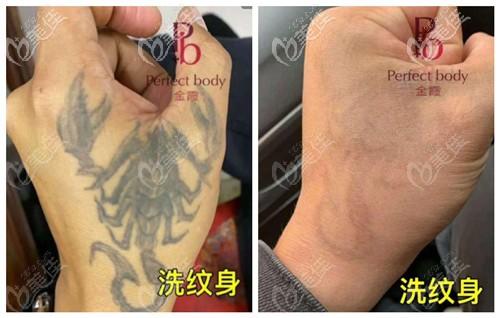 蜂巢皮秒洗纹身的效果前后对比