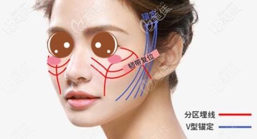 韩胜医生做面部埋线提升的优势