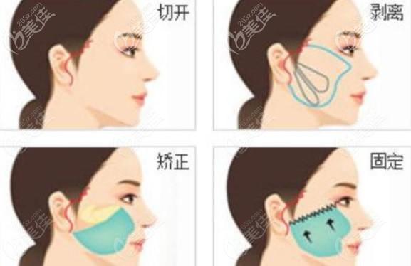面部大拉皮手术操作流程