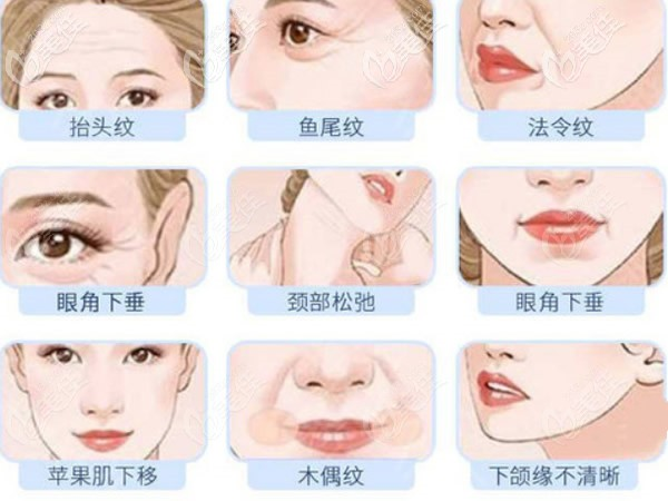 拉皮手术能改善哪些面部问题