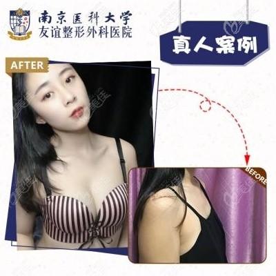 国产花样年华假体隆胸案例,用的是350CC假体