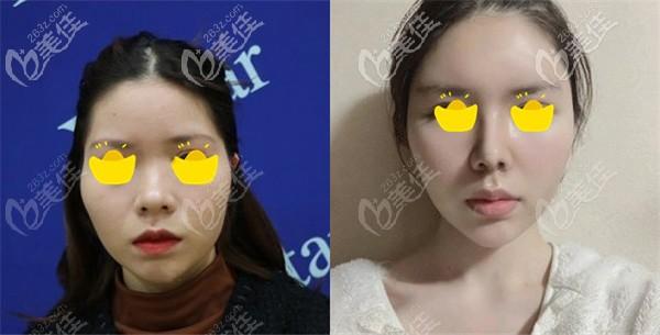 张龙院长做鼻综合的术前术后对比