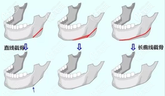 长曲线下颌角切除手术动画图示