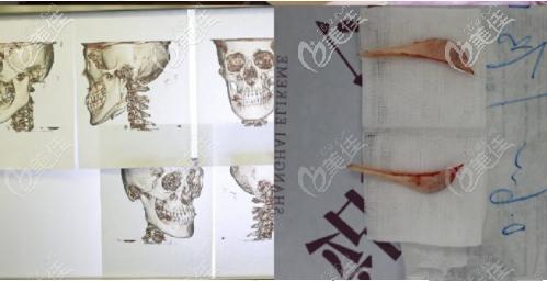 上海伊莱美长曲线下颌角切除手术图片