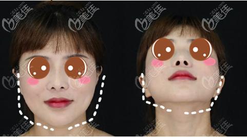 上海伊莱美医疗美容医院李湘原术前照片1