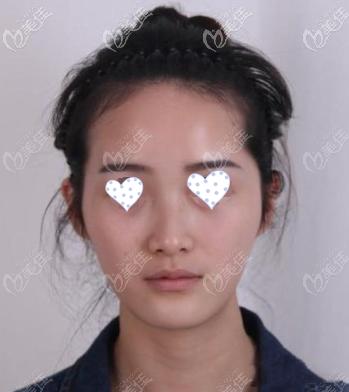 重庆联合丽格美容医院李哲远术前照片1