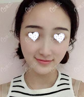 重庆联合丽格美容医院李哲远术后照片1