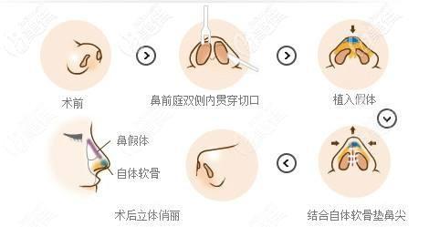 雷医生做鼻整形的手术原理