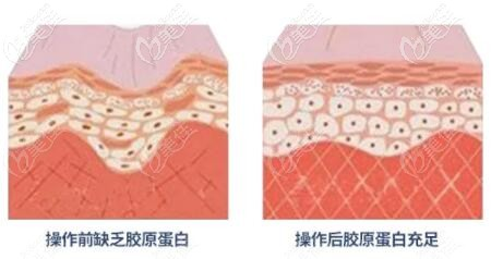 热玛吉抗衰皮肤前后效果对比变化示意图