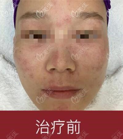 洛阳毛大夫医疗美容门诊部赵海芳术前照片1