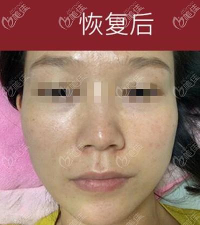 洛阳毛大夫医疗美容门诊部赵海芳术后照片1