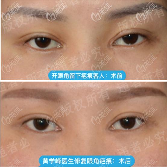 惠州诗璐医疗美容门诊部黄学峰术前照片1