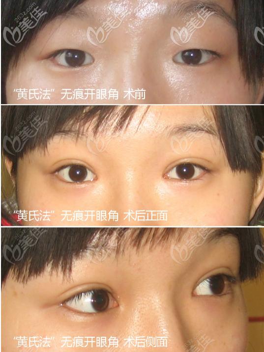 惠州诗璐医疗美容门诊部黄学峰术后照片1