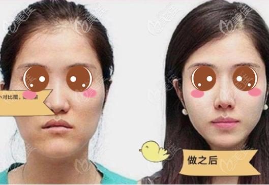 上海美立方医疗美容医院任天平术前照片1